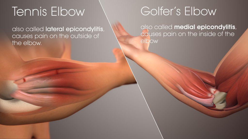 Tennis Elbow/Golfers Elbow