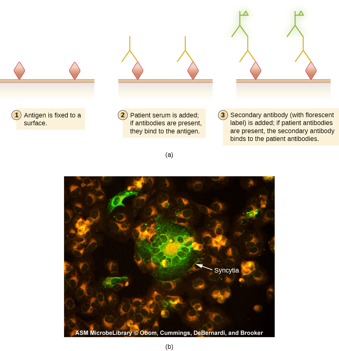 Panel (a) is a diagram depicting the procedure of indirect immunofluorescent assays. An unlabeled primary antibody binds to antigen on a microscope slide, then a secondary antibody, labeled with a fluorescent stain, binds the primary antibody. The complexes are visualized with a fluorescence microscope. Panel (b) is a fluorescence micrography of aAn indirect immunofluorescent stain using a patient's antibodies to the measles virus. The primary antibody binds to viral antigens on inactivated measles-infected cells affixed. Secondary antibodies bind the patient's antibodies and carry a fluorescent molecule.