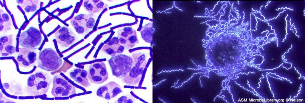 On the left, brightfield microscopy was used to visualize purple rods-shaped bacteria and larger stained white blood cells. The right image was taken using darkfield microscopy, and shows thin, brightly-lit spiral-shaped bacteria against a dark background.