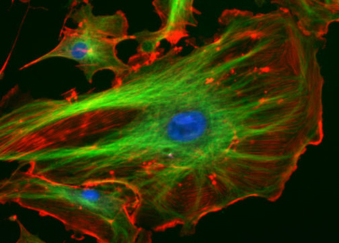 An image shows a large cell in the foreground and other cells further in the background. Different cellular structures have been stained with different fluorescent dyes, so that the cells a combination of green, blue and red, against a dark background.