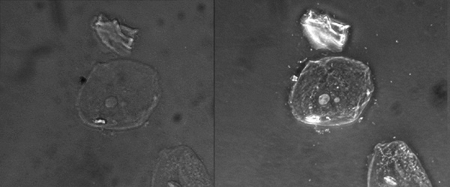 Two micrographs of a cell on a dark background are shown. In the brightfield image the cell is a faint circle with a small grey circle in the centre. In the phase-contrast image the cell is a bright circle with a bright circle in the centre.