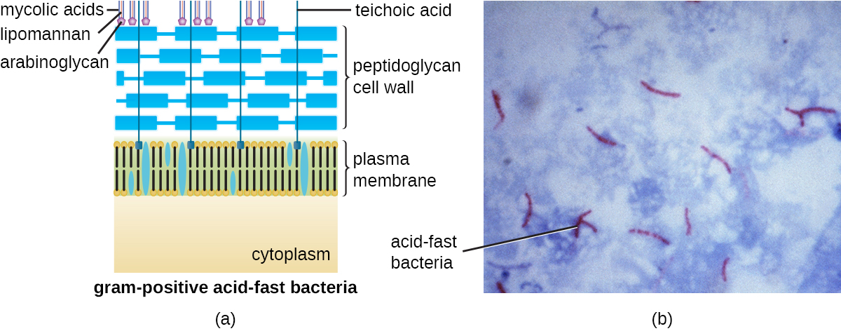 A) A diagram of acid-fast bacteria. B) A micrograph of acid-fast stained mycobacterial cells.