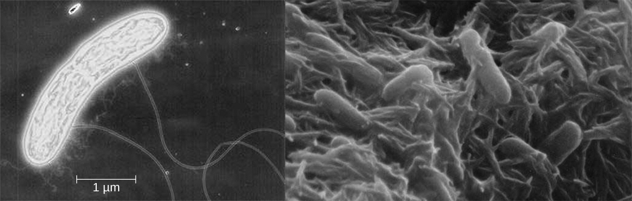 A micrograph of a rod shaped cell with long projections. The cell is approximately 5 µm long. Another micrograph showing many rod shaped cells attached to a matrix.