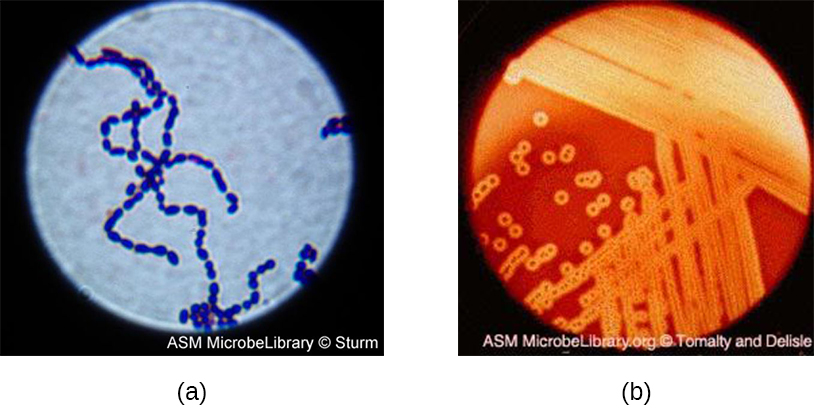 a) A micrograph of spherical cells in a chain. B) A photograph of colonies on agar. The agar is red, and there is a clearing around each colony.