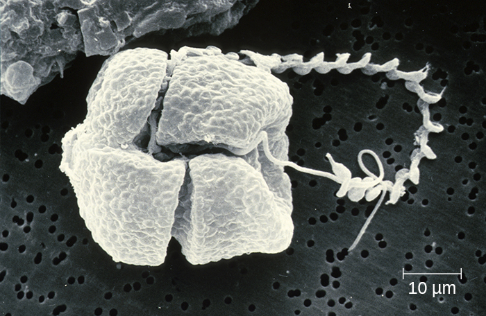 A micrograph of a square-shaped organism with two long projections.