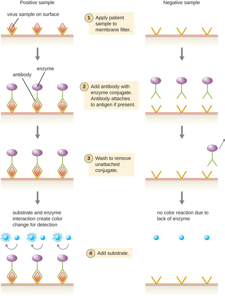 A diagram depicting the steps of an EIA for viral antigens.