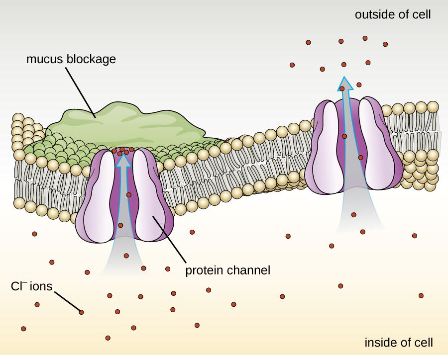 A drawing of a phospholipid bilayer in the centre with two protein channels. One is open and lets Cl- flow out of the cell. The other is blocked by a mucus blockage on the outside of the cell; Cl- ions can't flow through this channel.