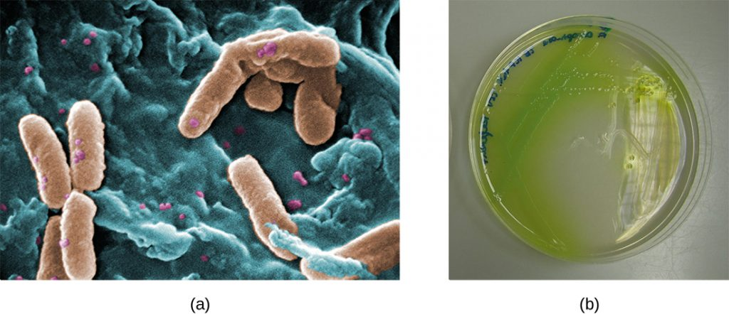 a) a micrograph of rod shaped cells. B) An agar plate with a green pigmented colonies; this green pigment is spreading past the edge of the colonies.
