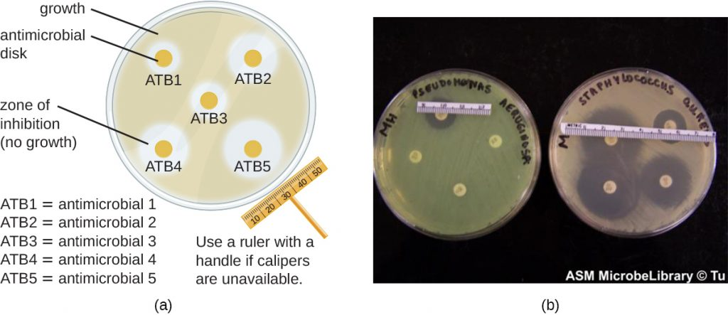 A) A drawing of a plate covered in bacteria. On the plate are 5 small antimicrobial disks with clear areas around them. The clear areas are zones of inhibition where bacteria do not grow. The size of the zone can be measured with a ruler or calipers to determine the effectiveness of the antibiotic. B) A photograph showing plates with antimicrobial disks with zones of inhibition.