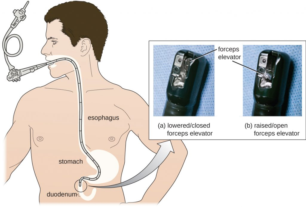 Diagram of a person with a duodenoscope inserted into their mouth – it travels through the esophagus and stomach to the duodenum. A photograph of the end of the scope shows a foreceps elevator in the lowered/closed and raised/open position.