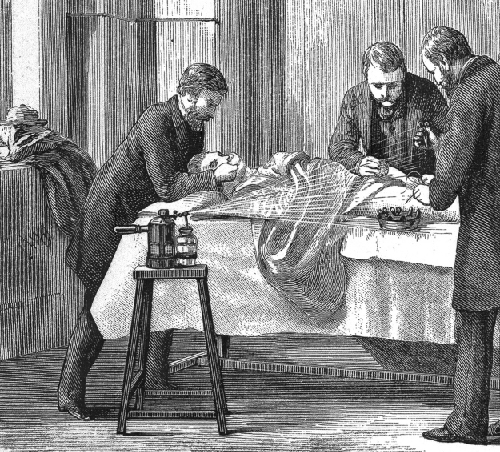 Drawing of three people standing over a patient.