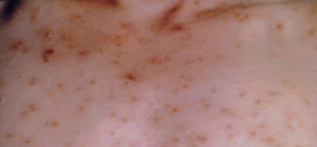 Photo of chickenpox rash on the back of a person's shoulders.