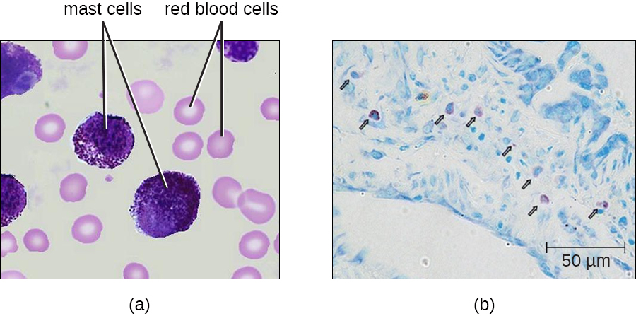 a) Mast cells in blood. Mast cells are large purple cells, red blood cells are small pink cells with a clear centre. b) mast cell outside of blood.