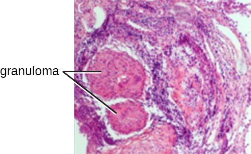 A micrograph of a tubercle which consists of many darkly staining cells that form a circular structure.
