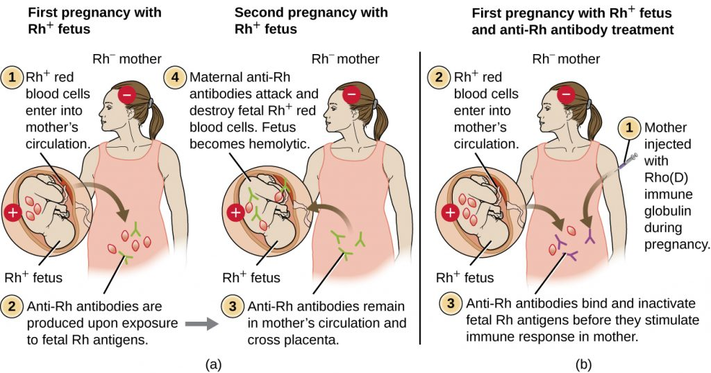 Diagram depicting the results of an Rh- mother experiencing two pregnancies with Rh+ fetuses.