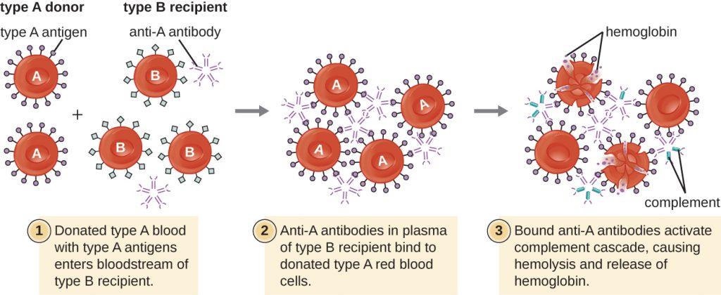 Diagram of the hypersensitivity reaction that occurs when a Type A donor gives blood to a Type B recipient.
