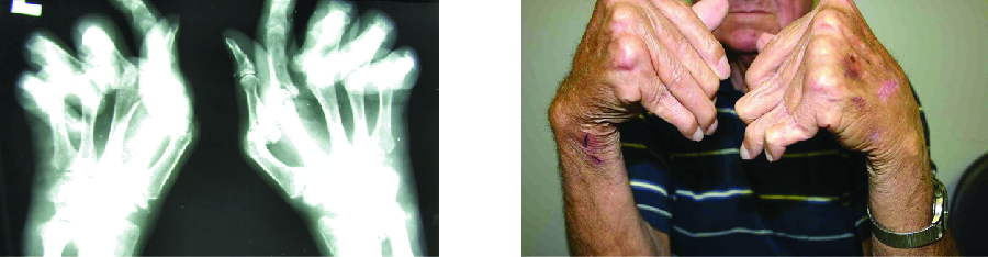 X-ray and photo of hands with joints bent at unusual angles.