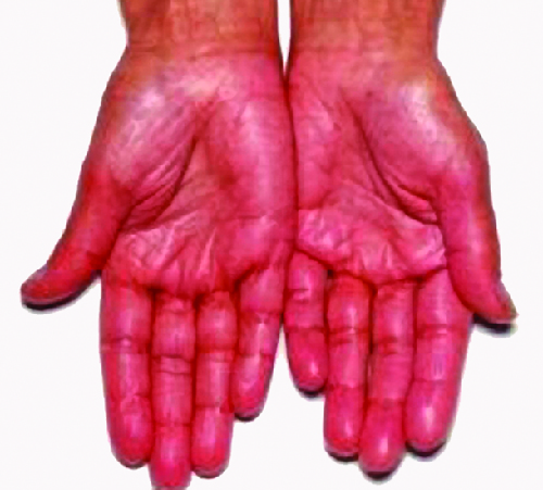 Two hands, palm up are shown. They display a symptom of Addison disease: they are quite red.