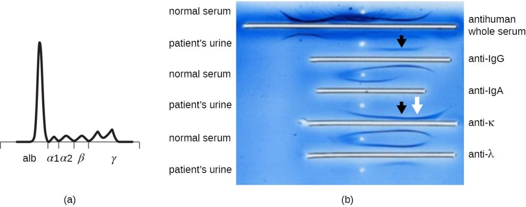A graph and experimental results from an immunoelectrophoresis assay of a patient's urine.