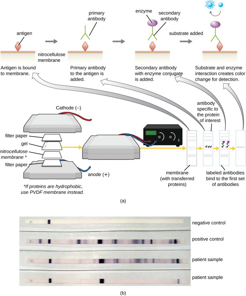 A diagram showing the process of a western blot and a photograph of a western blot.