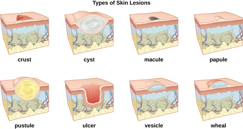 A table labeled types of skin lesions. Crust is shown as a raised region on the surface of the skin. Cyst is shown as a large white sphere in the upper layers of the skin. Macule is shown as a dark mark on the surface. Papule is shown as a raised bubble on the surface. Pusture is shown as a large yellow sphere in the upper layers of the skin. Ulcer is a large cavity in the skin. Vesicle is a small blue bubble in the upper regions of the skin. Wheal is a small blue bubble on the surface of the skin.