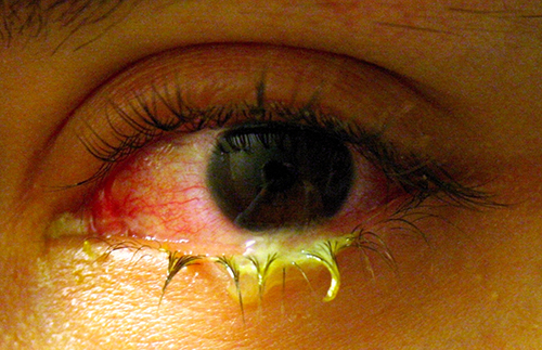 Eye with yellow discharge.