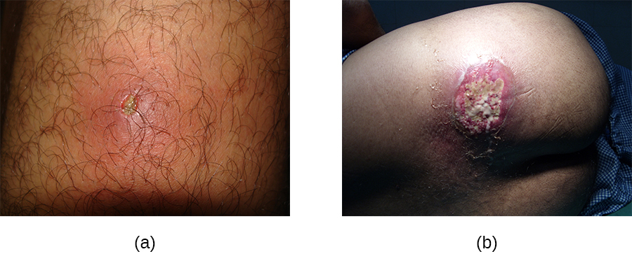a) a photo of a small inflamed region with a white centre. b) A large lesion with white and red.