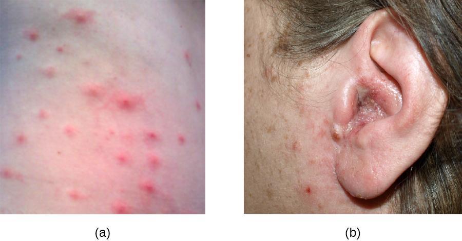 a) photo of hot tub rash that looks like acne b) photo of swollen ear.