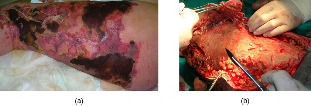 a) skin with large black, grey and red regions. b) Cut skin in surgery.