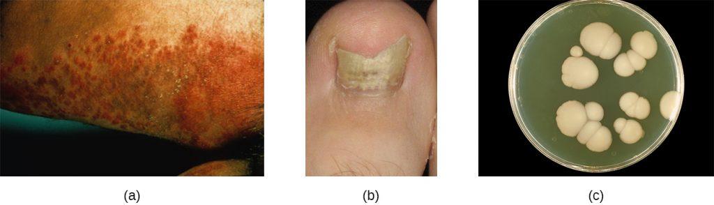 A) a dark, lumpy rash. B) a broken, yellow nail. C) large, white, fuzzy colonies on a plate.