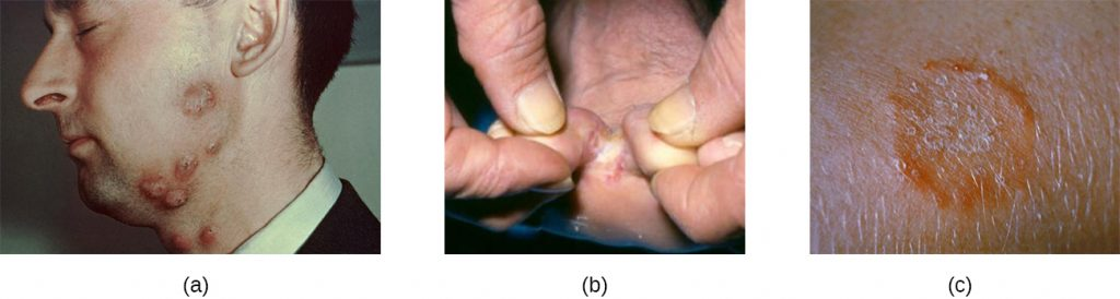 a) large red bumps on a cheek. B) white crusty skin on a foot. C) an orange ring on skin.