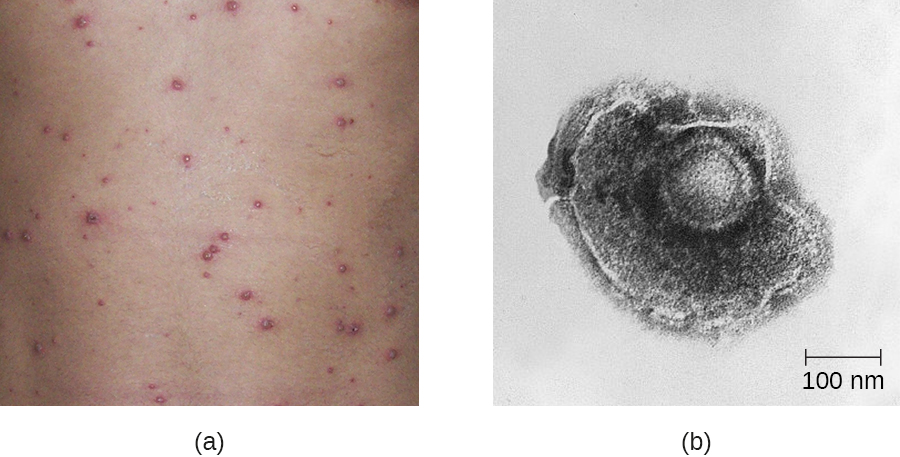 a) red bumps on skin. b) a micrograph of human herpesvirus 3 is shown. The diameter is approximately 300 nanometers according to a scale bar on the bottom right of the micrograph.