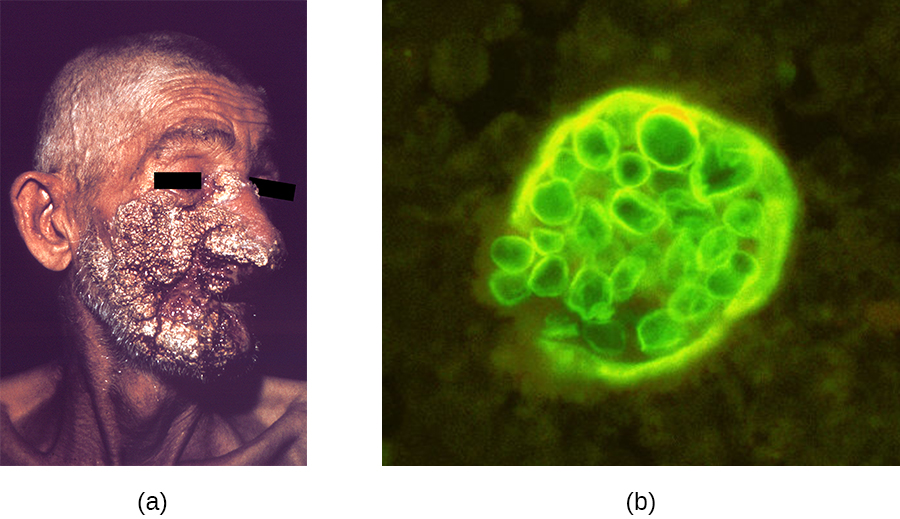 a) Large, dark lesions on a face. B) A micrograph of spheres in a larger sphere.