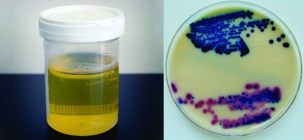 a small container filled with urine is shown on the left. The picture on the right shows a disc with a peach coloured film that is spotted with red and blue spots.