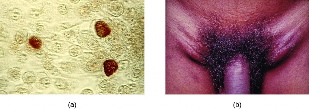 a) Micrograph showing brown colouration inside cells. B) photo of a swollen region on either side of the penis.