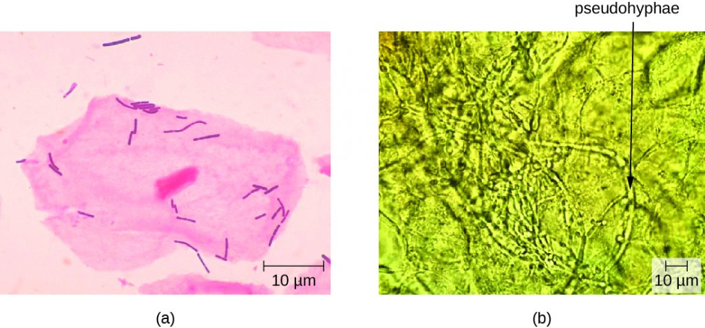 a) micrograph of large pink cell with a nucleus and smaller pink rod shaped cells. B) Micrograph of long tubes labeled pseudohyphae.