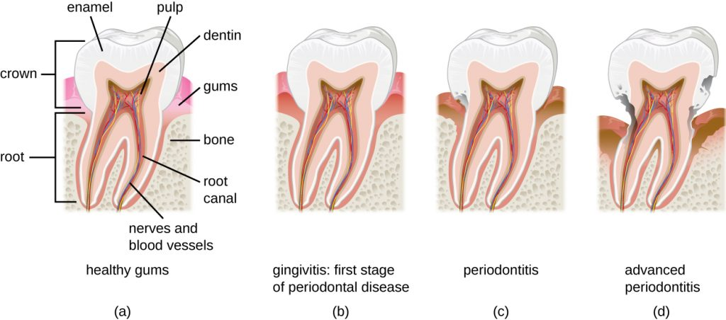 Diagram of a tooth with healthy gums compared to diagrams of teeth with differing levels of periodontal disease.