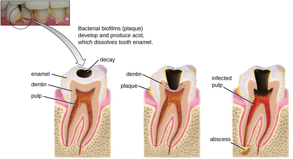 A photo of teeth with yellow plaque and diagrams of the stages of tooth decay.