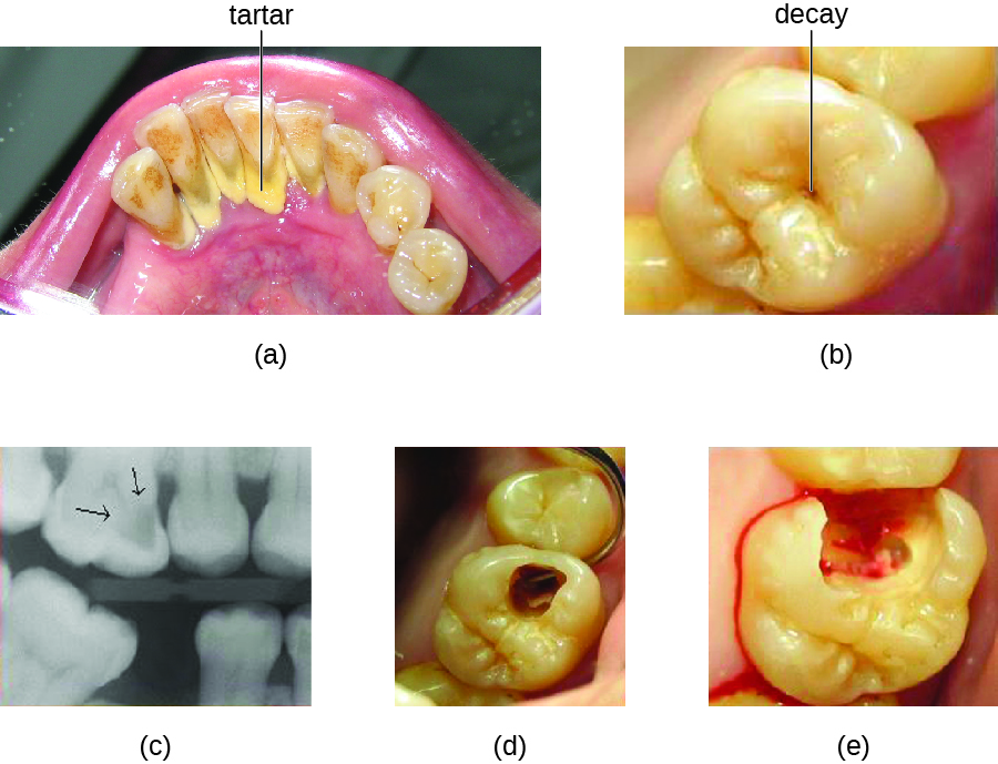 A) photo of a tooth with a dark spot labeled decay. B) micrograph of a tooth; dark regions have an arrow. C) photo of a tooth with a hole. D) photo of a tooth with a large, bleeding hole