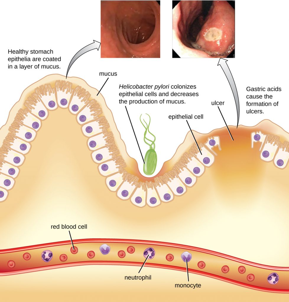 A diagram showing the lining of the stomach along with photos of a healthy stomach and an ulcerated stomach.