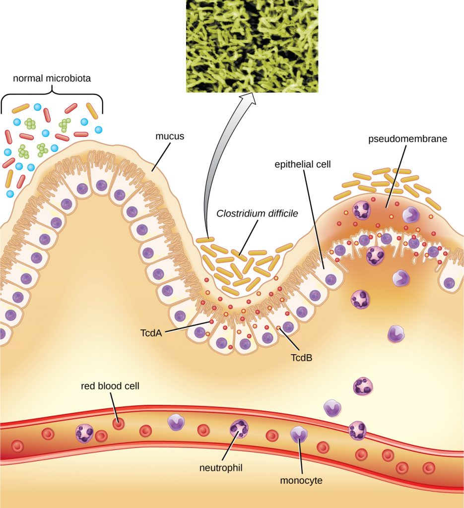 A diagram showing how Clostridium difficile is able to colonize the mucous membrane of the colon when the normal microbiota is disrupted.