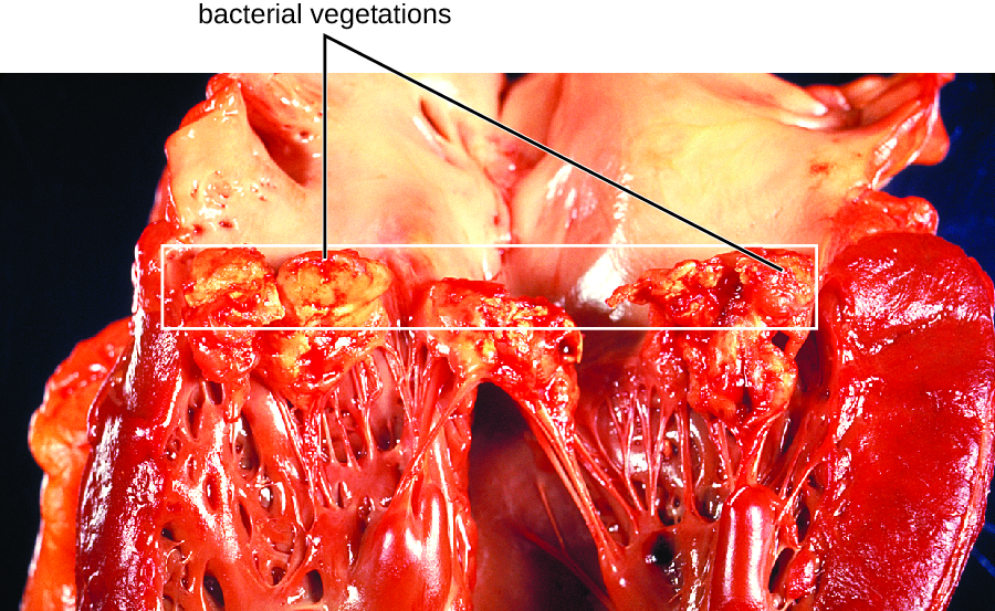 a heart with subacute bacterial endocarditis. There are thick, swollen strands in the heart. There are also large lumpy structures at the ends of the chordae tendinae.
