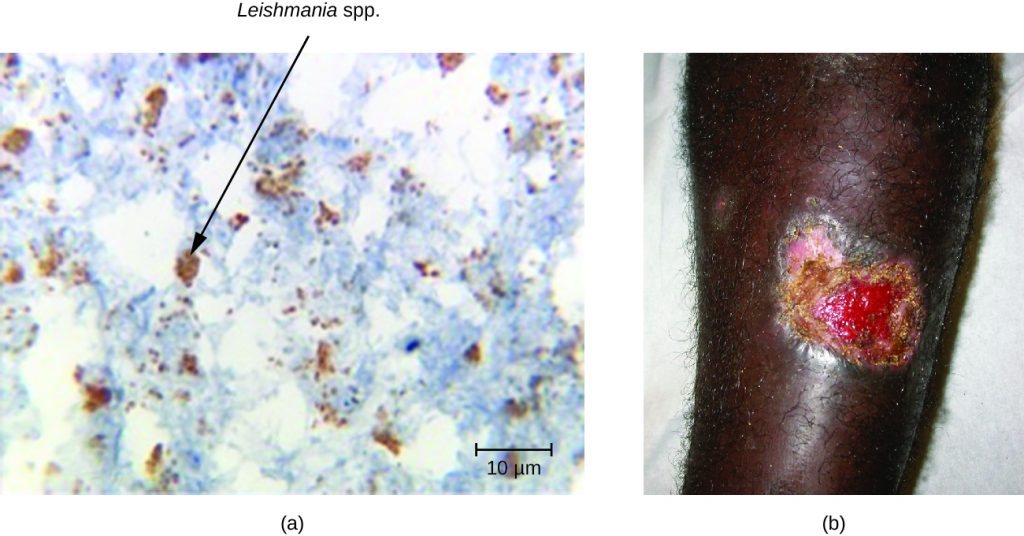 a) Micrograph of a tissue sample. A black arrow points to leishmania mexicana. B) a large, open wound on skin.