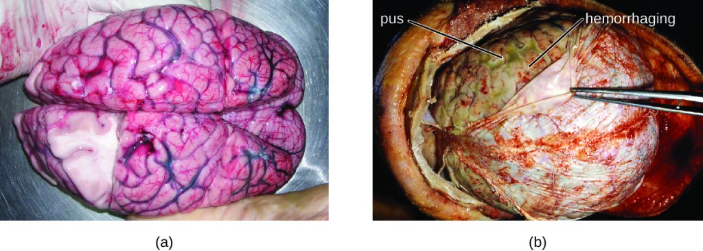a) Photo of brain. B) Photo of thin layer on top of brain being pulled back by forceps.