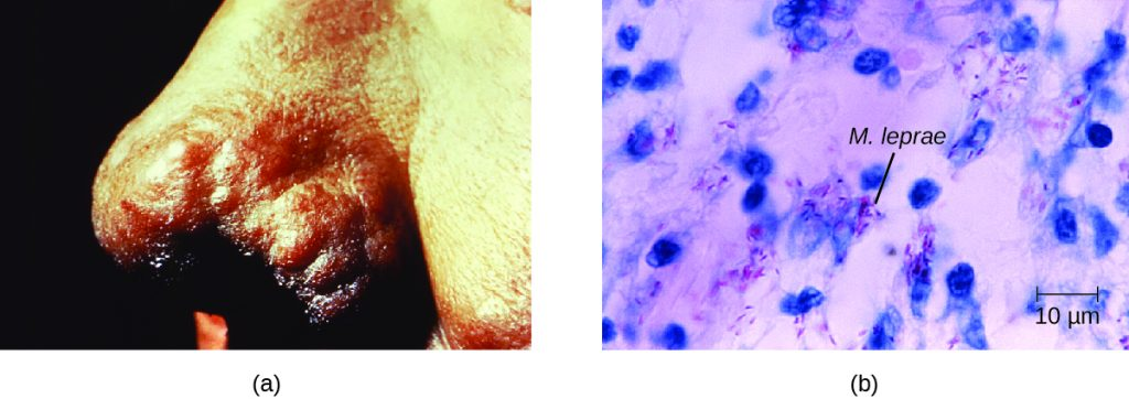 a) Black tissue on end of nose. B) Small purple cells next to larger blue ones.