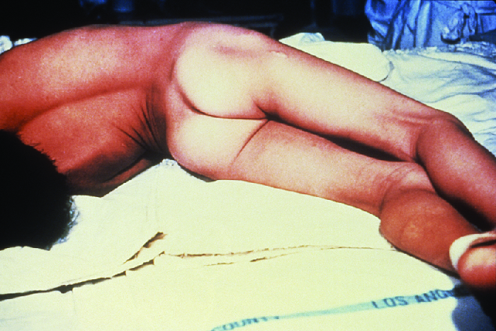 Photo of a person in an arched position.