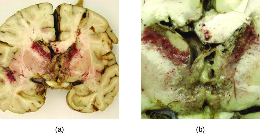 a) Photo of brain section with red granules in the centre. b) close-up of granules.