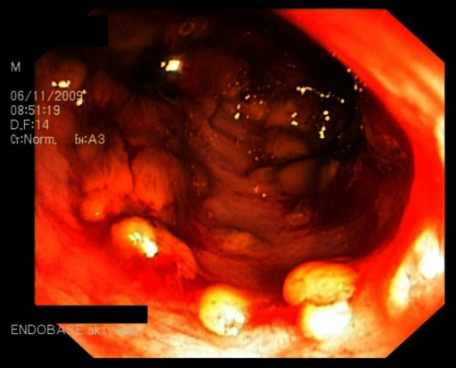 Photograph from a colonoscopy of a patient with pseudomembranous colitis. Yellow plaques are characteristic of the disease and are ulcerations of the colon mucosal epithelium