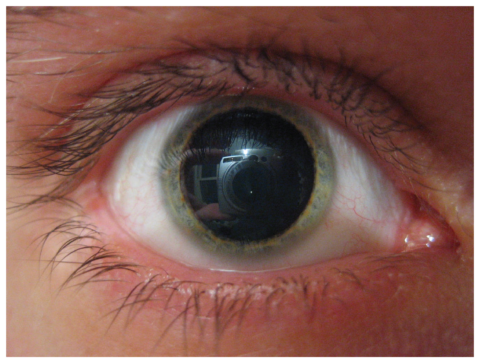 This photograph shows a person's eye with a relatively large pupil.