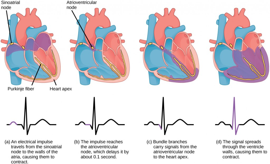 Image consists of four illustrations showing the movement of blood through the heart in relation to an electrical signal. The blood and respective segment of the electrical impulse are coloured purple.